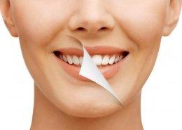 teeth whitening north las vegas
